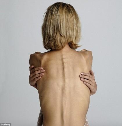 Chán ăn có thể là do cơ thể bị nhiễm khuẩn
