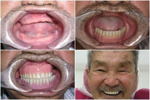 """""""Nụ cười hạnh phúc"""" mang tới 30 cơ hội làm răng miễn phí trị giá 300 triệu đồng/trường hợp - 2"""
