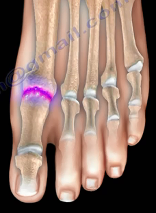 Đau ngón chân cái: Bệnh gì? - 1
