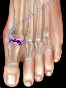 Đau ngón chân cái: Bệnh gì? - 2