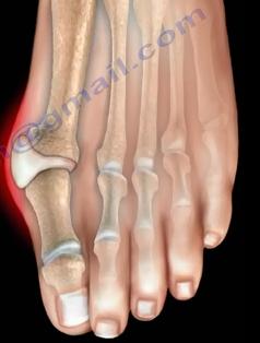 Đau ngón chân cái: Bệnh gì? - 3