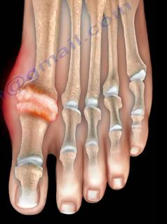Đau ngón chân cái: Bệnh gì? - 4