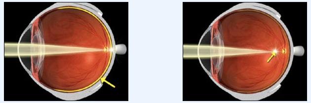 Mắt bình thường Mắt cận thị