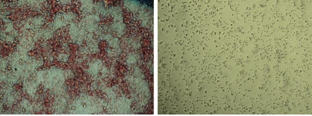Bên trái, các tế bào được xử lý bằng giả dược sản sinh nhiều lipid hơn đáng kể so với các tế bào bên phải, được xử lý bằng ND-646