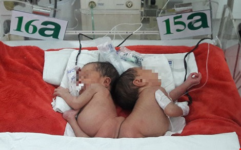 Hai bé sẽ được phẫu thuật tách rời khi tròn ba tháng tuổi ẢNH: HÀ PHƯỢNG