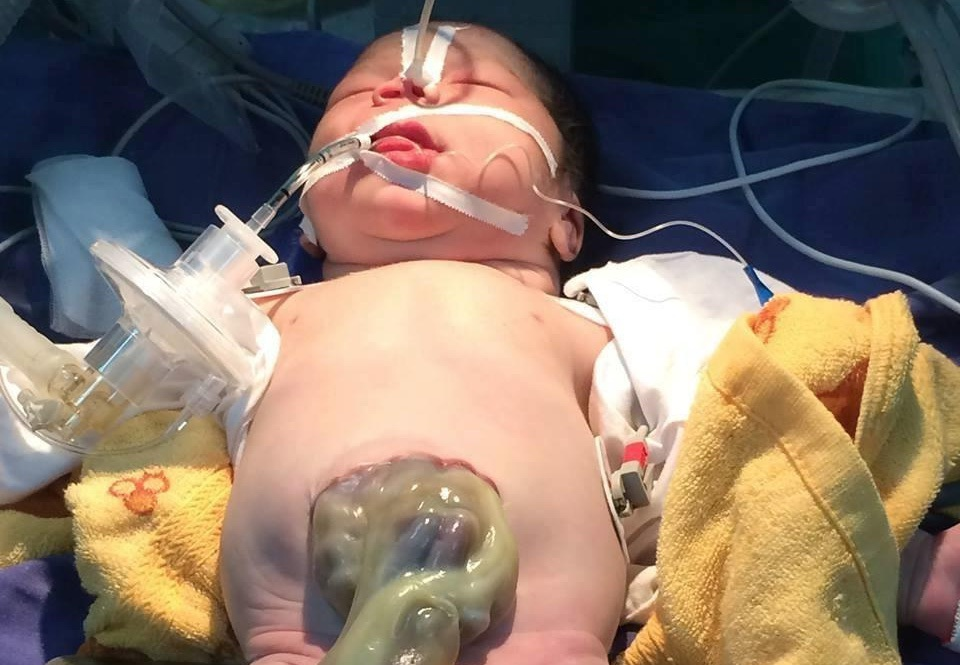 Cứu sống bé sơ sinh 1 giờ tuổi lộ nội tạng ra ngoài thành bụng - 1
