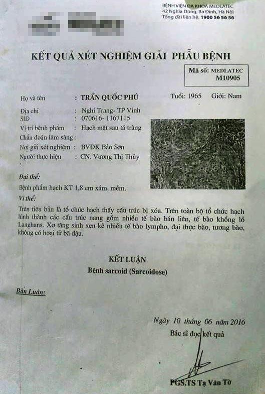 Kết quả xét nghiệm giải phẫu bệnh (khố u của ông Phú được lấy ra) do BV Bảo Sơn cung cấp