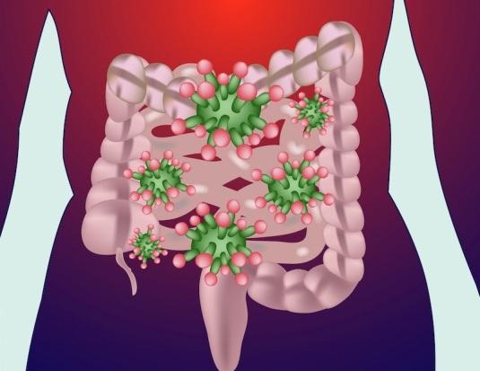 Vi khuẩn đường ruột khác biệt ở trẻ em béo phì - 1