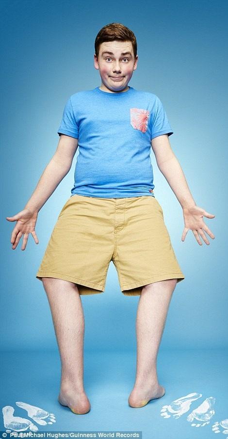 Cậu bé Maxwell Day (14 tuổi) ở Enfield, phía bắc thủ đô London, Anh có thể tự xoay bàn chân của mình tới 157 độ.
