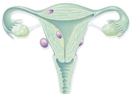Từ 30 đến 50 tuổi, phụ nữ có nhiều nguy cơ mắc u xơ tử cung