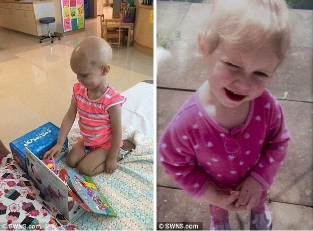 Emily sau và trước khi được đưa đi điều trị. (Nguồn: Dailymail)