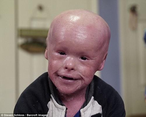 Vì mắc căn bệnh Harlequin ichthyosis hiếm gặp khiến làn da của bé Evan Fasciano phát triển nhanh gấp 10 lần so với bình thường.