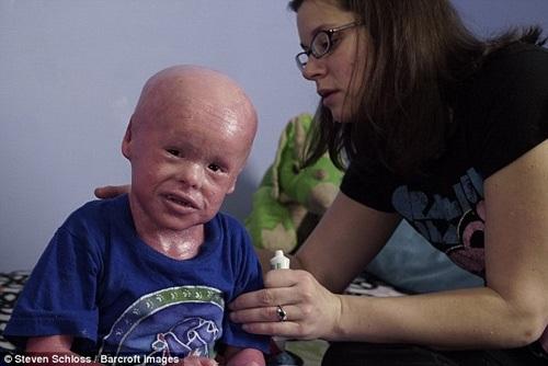 Để tránh nhiễm trùng, Evan buộc phải tắm 2 lần mỗi ngày để chà sạch lớp da chết