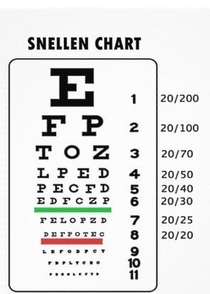 Bài tập chữa mắt cận thị - 2