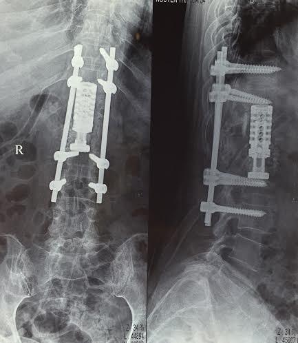 Vùng đốt sống được thay thế sau khi phẫu thuật (Ảnh BS cung cấp)