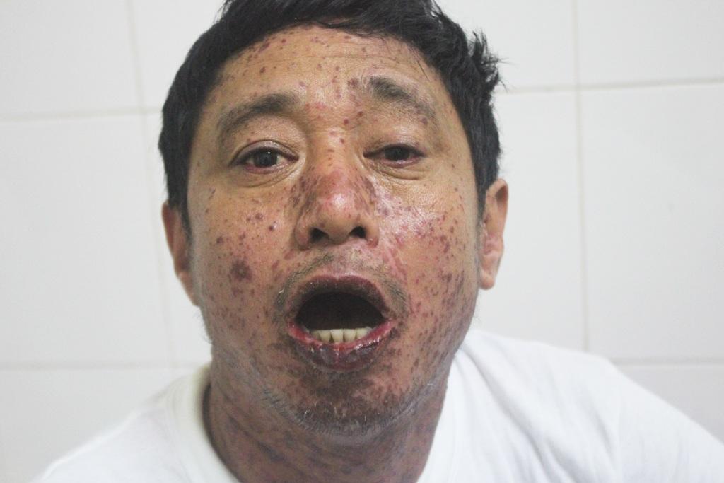 Các nốt ban đỏ khắp mặt, cổ, miệng bị lở loét khiến bệnh nhân không thể ăn hay nuốt được.