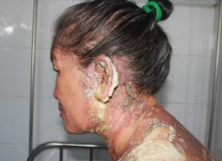 Vùng lỗ tai bà L. bị nặng nhất, không thể nghe được sau khi bị tạt nước sôi