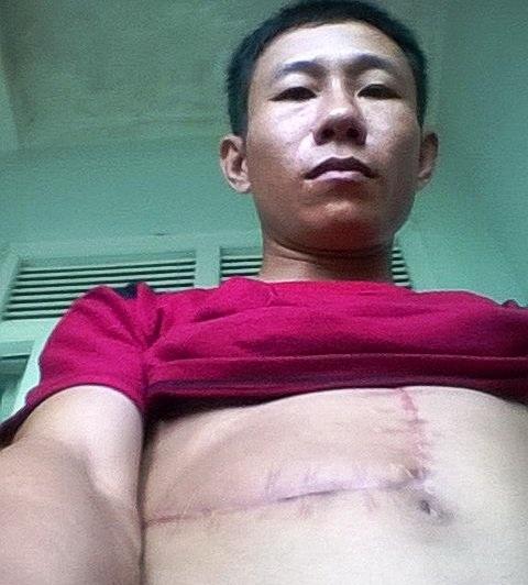 Anh Phan Doanh, công nhân Công ty Lâm nghiệp đường 9 là một trong số những nạn nhân bị trâu tấn công và bị thương khá nặng