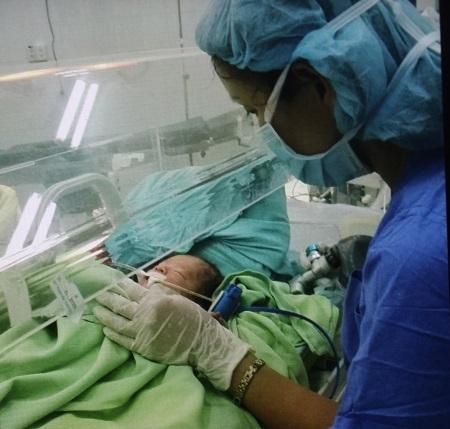 Bé bị hở thành bụng bẩm sinh rất hiếm gặp, tỷ lệ 1/4.000 ca sơ sinh.