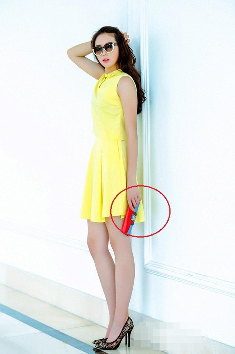 Thậm chí Hoa hậu bị mất hẳn một ngón tay khi cầm ví.