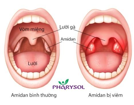 Viêm Amidan có thể chữa khỏi mà không cần cắt bỏ - 2