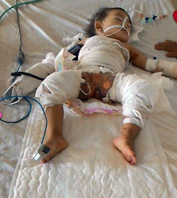 Nỗi đau thấu da thấu thịt của bé 2 tuổi bị nồi canh đang sôi đổ lên người - 1
