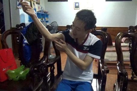 Anh Dũng chỉ phần cổ tay hoại tử đã được phẫu thuật hồi tháng 2/2015.