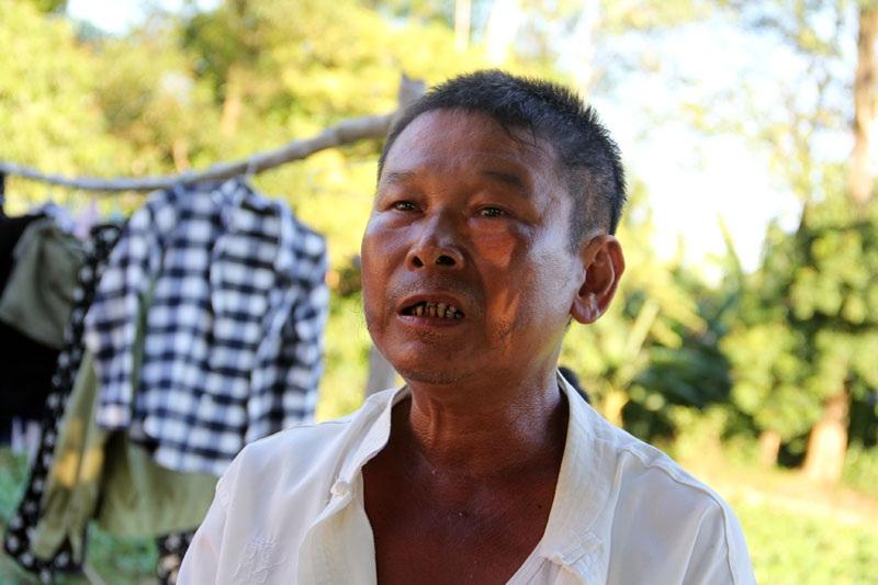 Ông Trần Trọng Tài - thương binh hạng A, thương tật hạng 4/4 ở xóm 11, xã Kỳ Giang, một nạn nhân của đường dây lừa đảo.