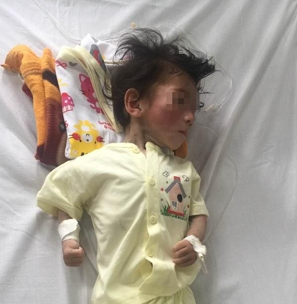 Hiện bé Yến Nhi đang được chăm sóc tại khoa Tiêu hóa - Dinh dưỡng. Ảnh: K.C