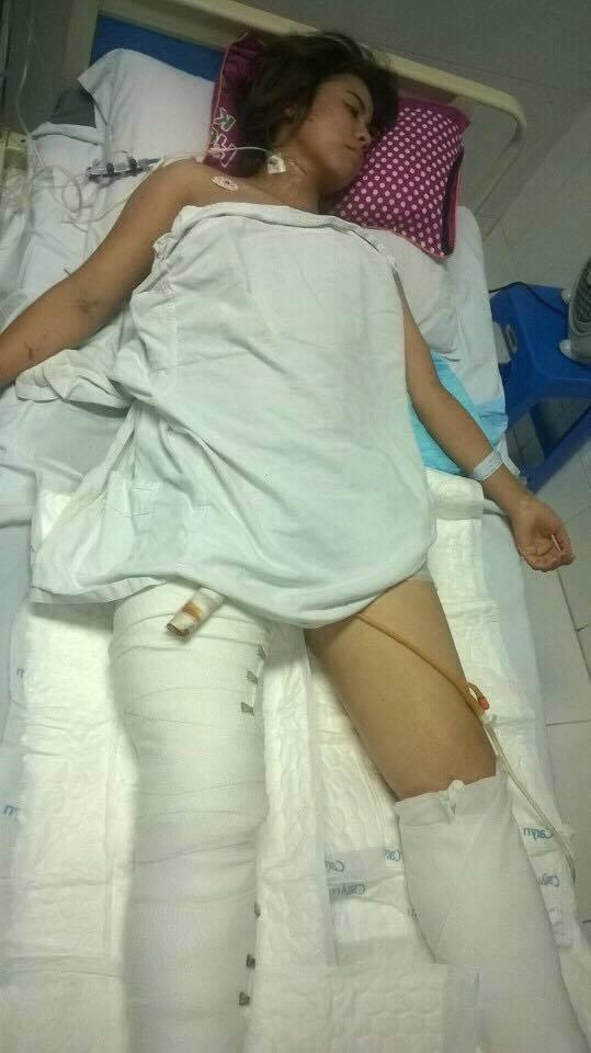 Và hiện tại vẫn phải lọc máu do suy thận, thay băng chân thường xuyên nhưng tiên lượng giữ chân khó khăn vì chấn thương nặng.