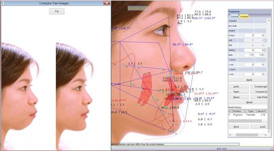 Phần mềm Vceph phân tích cấu trúc khung xương và mô mềm tại KIM hospital để BS Nguyễn Hữu Nam có thể đưa ra quyết định nên phẫu thuật hàm hay niềng răng