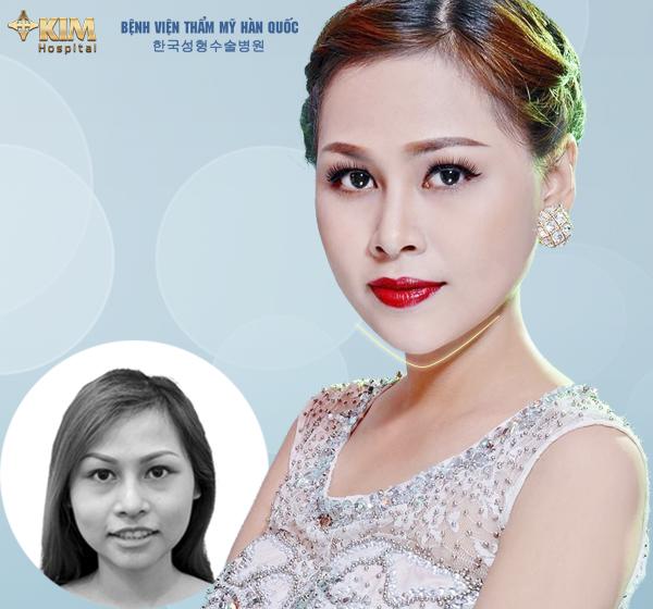 Người mẫu ảnh Emily Linh đẹp hơn, thành công hơn sau khi gọt mặt V line, nâng mũi S line tại KIM Hospital do trực tiếp bác sĩ Nam thực hiện