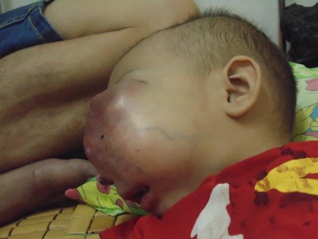 Khối u quá to đã bịt kín khoang mũi, buộc bé phải thở bằng miệng và hết sức khó khăn