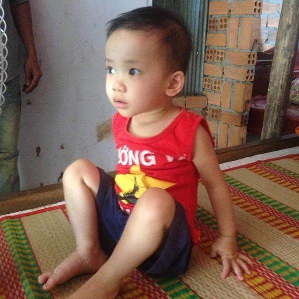 Bé Dương Thị Quỳnh Anh mang trong mình nhiếu căn bệnh từ khi mới hơn 1 tháng tuổi
