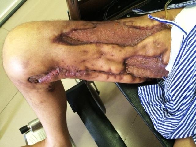 Chân phải của anh Việt biến dạng