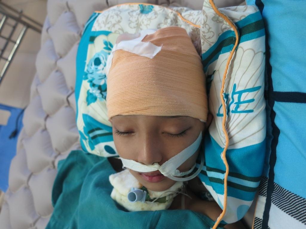 Bị đánh quá mạnh khiến phần xương sọ phía bên trái của cháu Chiến bị vỡ, khi cháu hồi phục sẽ tiến hành phẫu thuật cấy ghép nhưng chi phí rất cao.