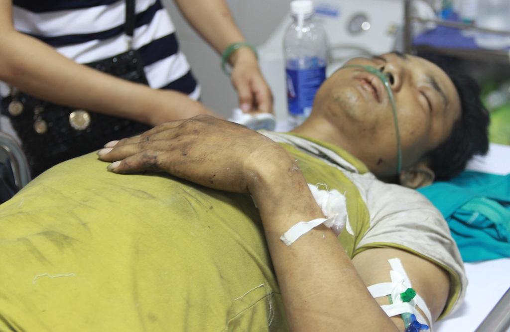 Bệnh nhân Võ Đình Hiệp, sinh năm 1995, xã Nghi Lâm, huyện Nghi Lộc, Nghệ An, bị gãy 2 chân, tay trái...
