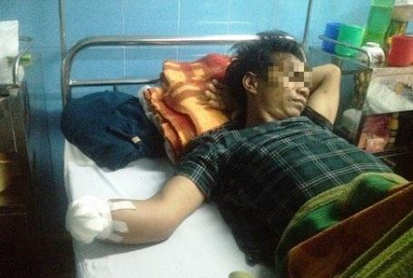 1 trong 3 nạn nhân ở Quảng Bình phải nhập viện cấp cứu do chơi pháo trong đêm giao thừa (Ảnh: L.N)