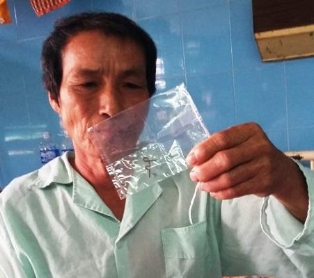 Bệnh nhân Dương Tán và dị vật là dây kim loại bằng đồng dài 4cm nuốt vào phế quản