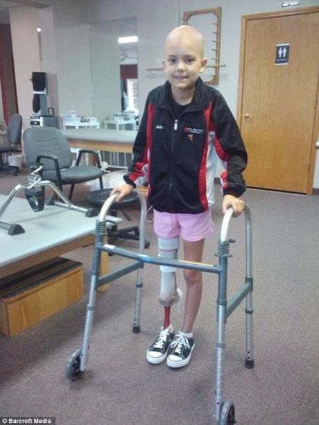 Gabi năm 9 tuổi, khi em vừa trải qua ca phẫu thuật và bắt đầu tập đi trở lại.
