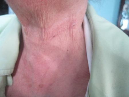 Vết cắt trên cổ bà Bảy do nghịch tử gây ra