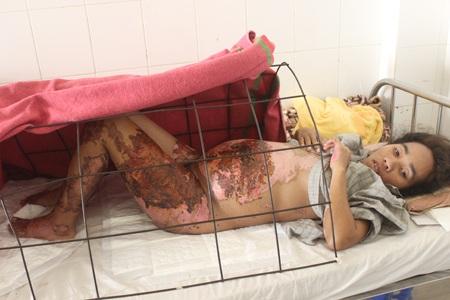 Xót xa người mẹ mang thai 6 tháng bị bỏng nặng vì rơi vào chảo dầu - 1