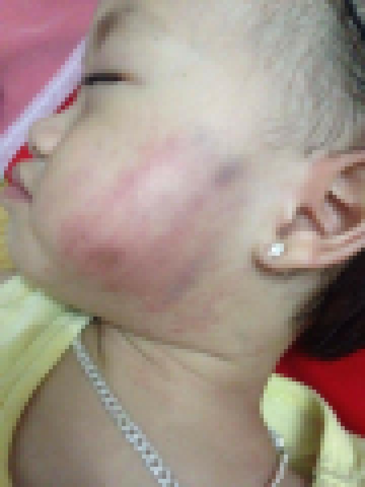Bé gái bị thâm tím mặt ở cơ sở mầm non Ánh Sao