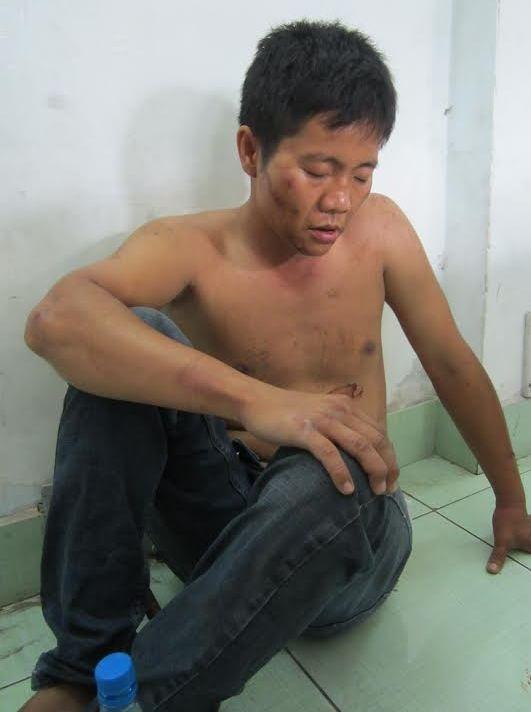 Tên cướp nguy hiểm Lê Hoàng Minh cùng đồng bọn đang bị công an quận 9 tạm giữ hình sự