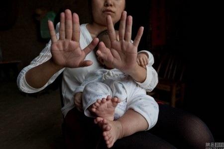 Mẹ của cậu bé Honghong cũng bị mắc chứng bệnh tương tự khiến cô có đến 12 ngón tay