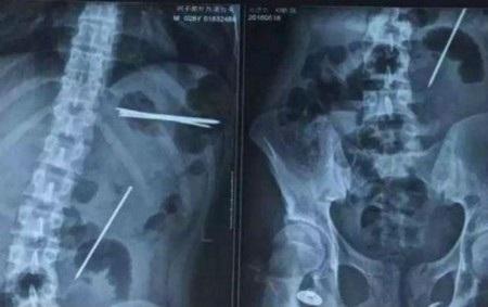 Phim chụp X-quang cho thấy những cây đinh nằm rải rác trong cơ thể của bệnh nhân
