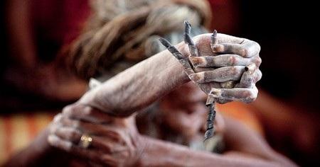 Cánh tay của ông Amar đã héo khô vì không còn được sử dụng từ lâu