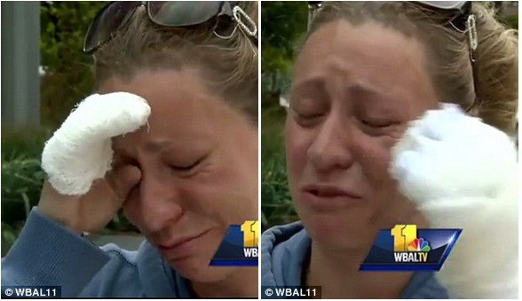 Cô Erika bị bỏng cả ở 2 tay trong khi cố gắng quay trở lại căn nhà bị cháy để cứu con
