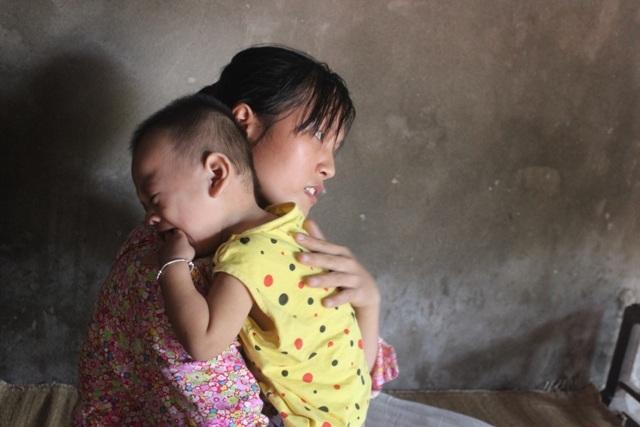 Người mẹ bất hạnh sinh hai con đều bị bại não