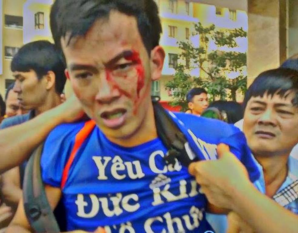 Những hình ảnh tại cuộc xô xát khiến cư dân bị thương